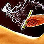 Moxibustión y Qi Gong: El Poder de la Energía en Tus Manos.